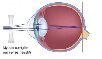 schéma d'une myopie corrigée par verres négatifs
