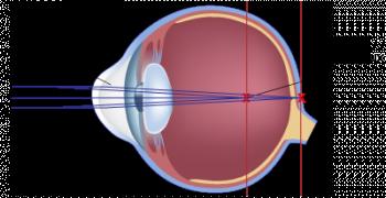 schéma scientifique de l'astigmatisme