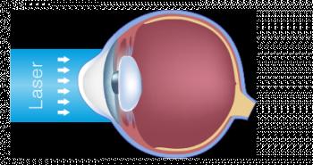 schéma scientifique de l'oeil et de l'astigmatisme