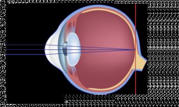 schéma astigmatisme