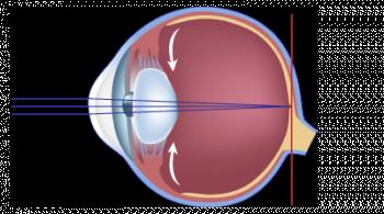 schéma de la vision normale cataracte