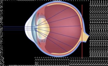 schéma de la vision cataracte