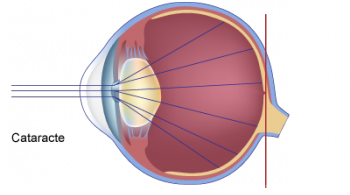 schéma de la cataracte