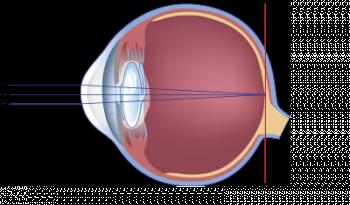 schéma de l'aspect post operatoire de la cataracte