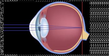 schéma de la vision normale de l'hypermetrope