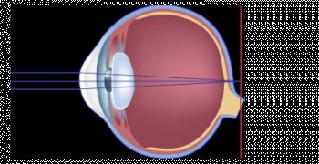 schéma scientifique de l'hypermetrope
