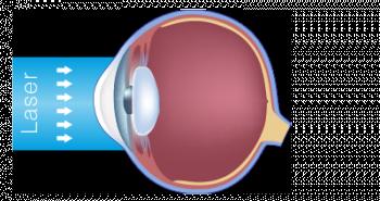 schéma de l'oeil hypermétrope