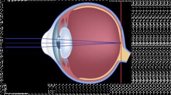 schéma de l'oeil hypermetrope