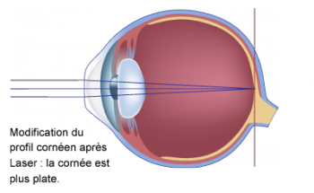 schéma d'un oeil myope