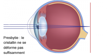 schéma de presbytie et du cristallin