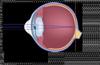 schéma d'un oeil presbyte